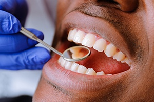 Closeup of patient during dental exam
