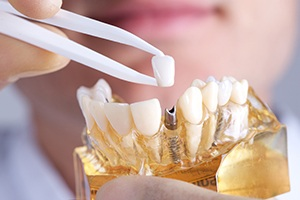 Model of implant supported dental crown