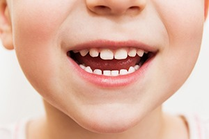 Closeup of kid's healthy smile