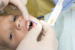 Child receiving fluoride treatment
