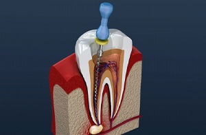 Image of root canal procedure on infected tooth.
