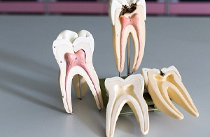 Model of root canal therapy.