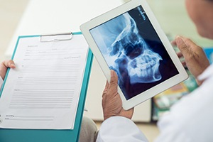 Dentist looking at x-rays of skull and jawbone
