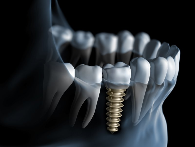 Dental implant replacing missing back tooth